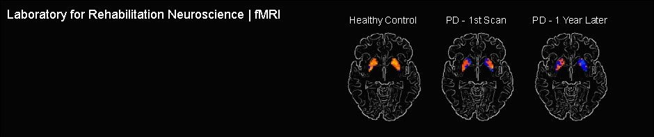 fMRI-PD_banner